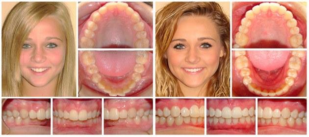 Invisalign Fort Worth | Cosmetic Dentist | Hulen Dental