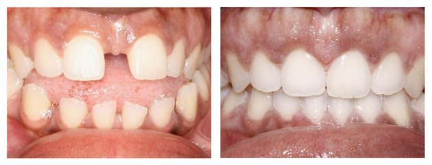 Invisalign Before And After Gap Invisalign Fort Worth ...