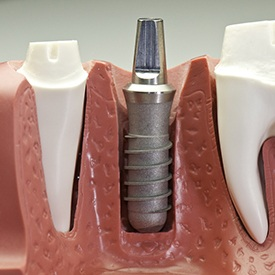 Model of a dental implant post.