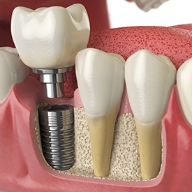 Model of each part of a dental implant.
