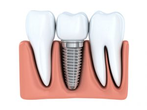 Dental implants in Fort Worth replace teeth and strengthen the jaw. Are they a suitable prosthetic for you? Find out from the experts at Hulen Dental.
