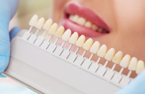 veneers color matching guide
