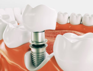 Model of dental implant pieces in mouth